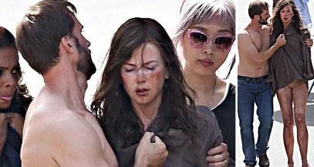 بالصور: ما سبب الكدمات على وجه نيكول كيدمان وحالتها المذرية؟